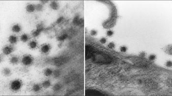 La variante Delta del coronavirus detrás la cámara de un microscopio electrónico